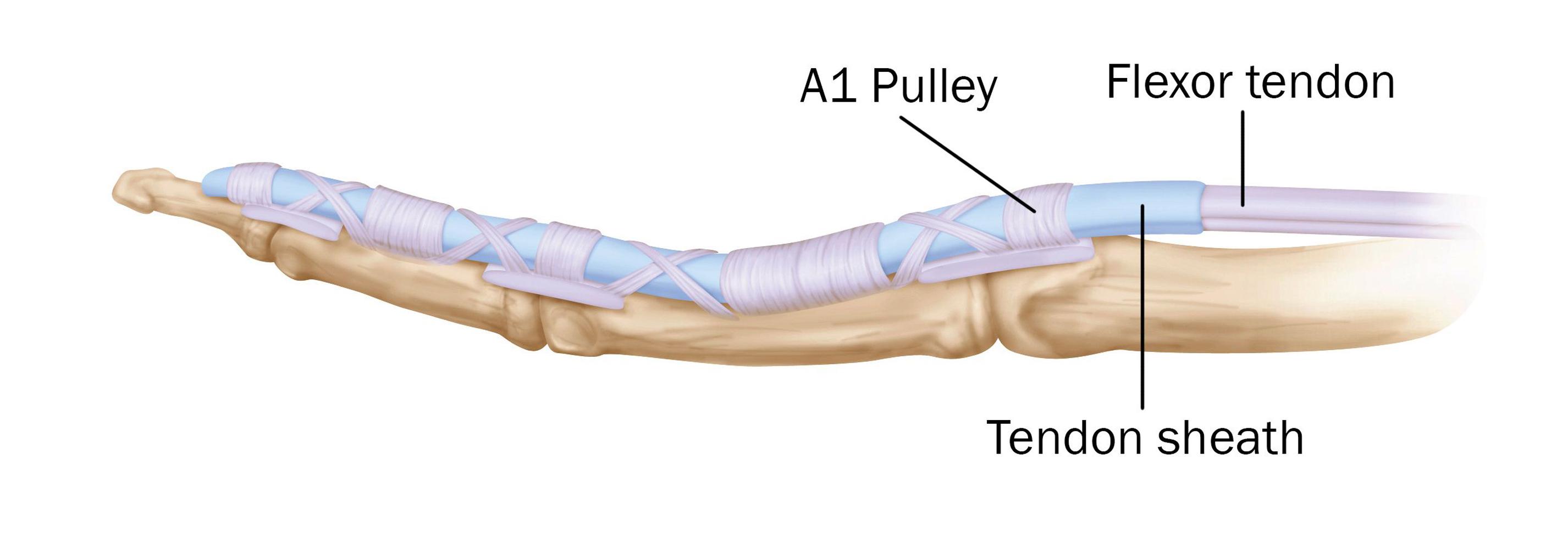 Trigger Finger - Trigger Thumb - Orthoinfo