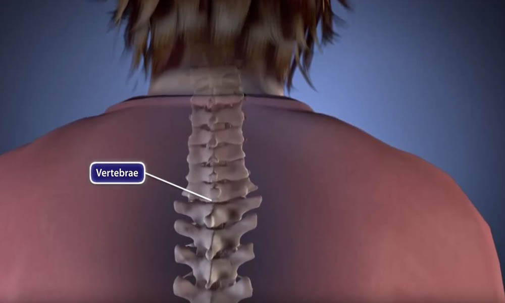 Spinal Fusion Procedure Animation Orthoinfo Aaos