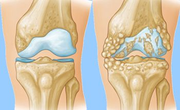 Arthritis of the Knee , OrthoInfo , AAOS