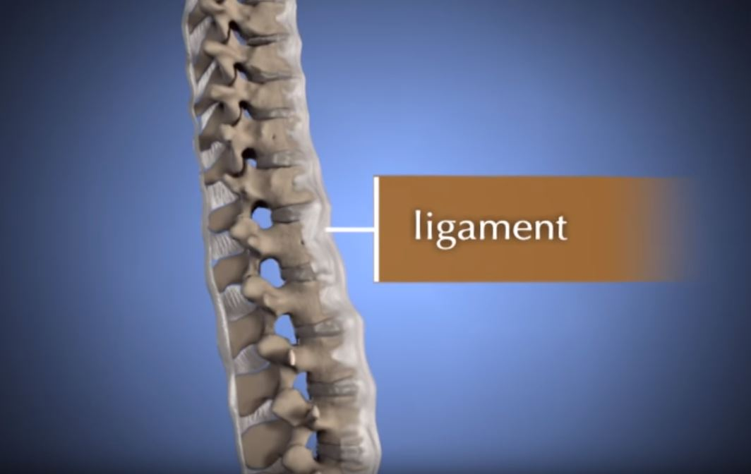 Cervical Radiculopathy: Surgical Treatment Options - OrthoInfo - AAOS