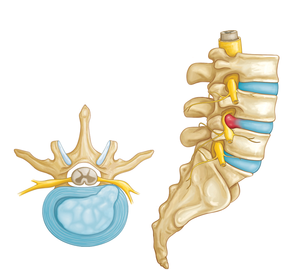 lumbar disc problems Lumbar degenerative disc disease faisel zaman md back pain is one of the most common health problems facing people today it is the second most common reason for a doctor's visit.