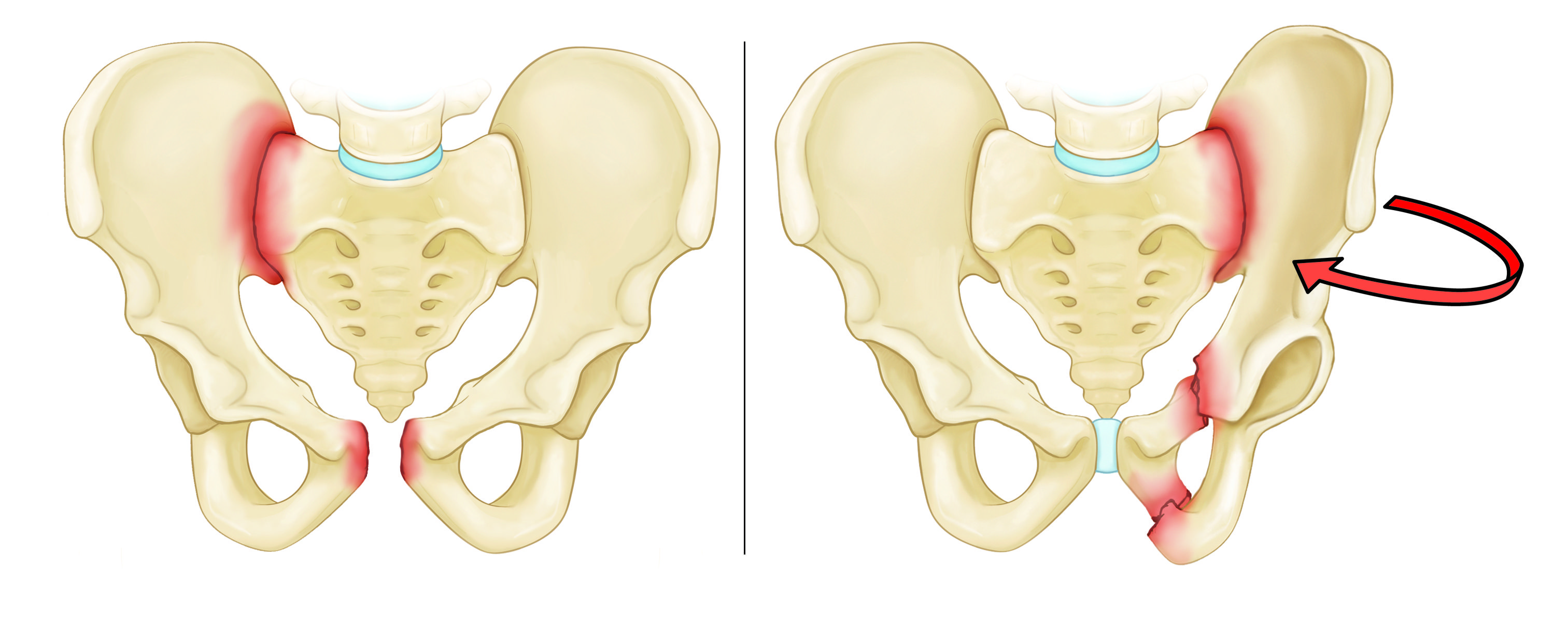 Anterior-posterior compression and lateral compression fractures pelvic fractures