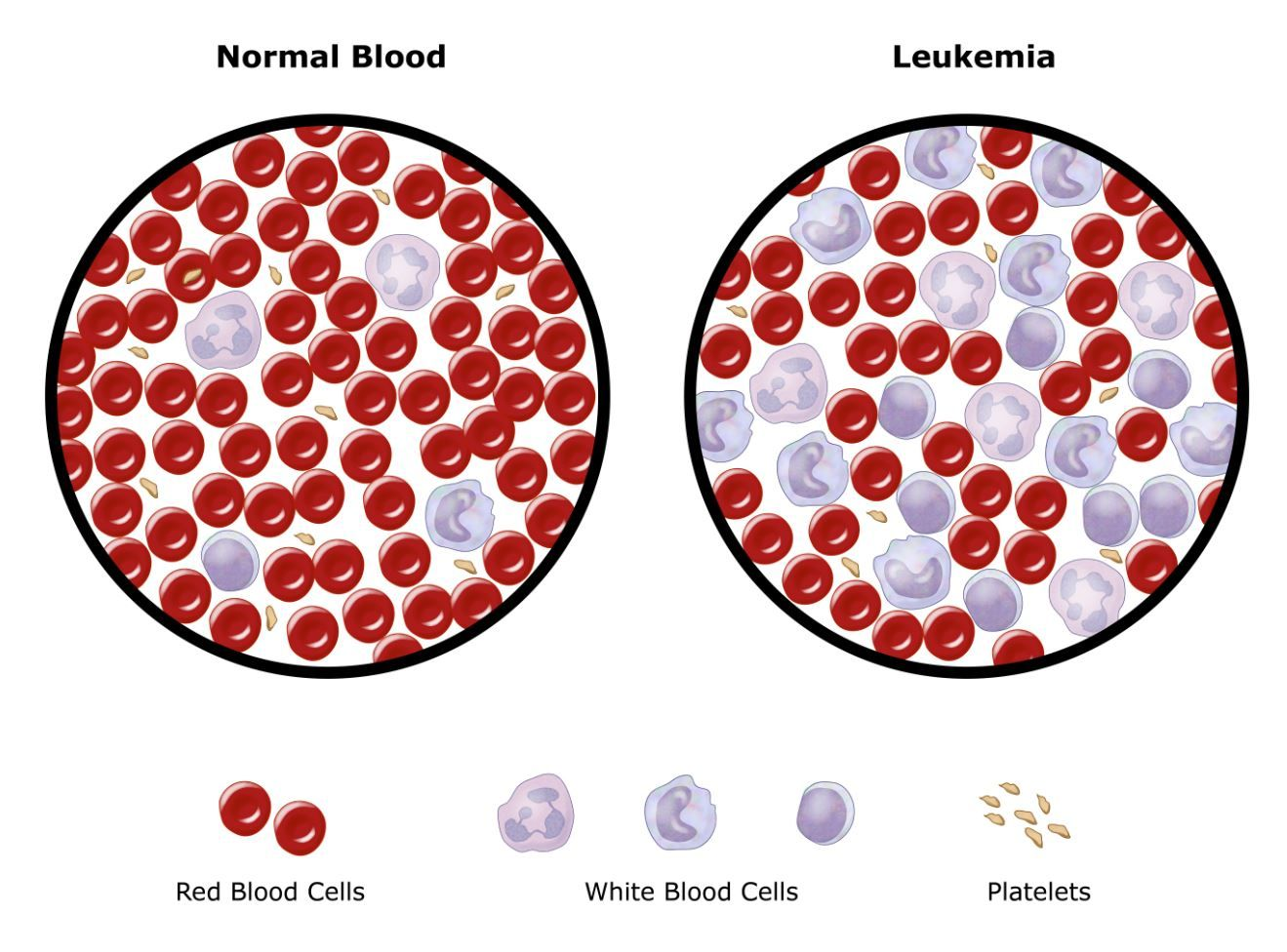 "disease diary leukemia Campath was developed as a second line treatment for the more common b-cell form of cll there is a potential market of 16,000 new cases of b-cell cll per year the number of new cases of t-pll is only 125-150 ironically t-cell disease is the more responsive to campath use of campath for t-pll remains ""off label."