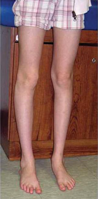 Adolescent with misaligned kneecap