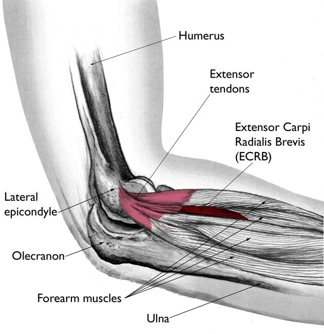 ECRB muscle and tendon