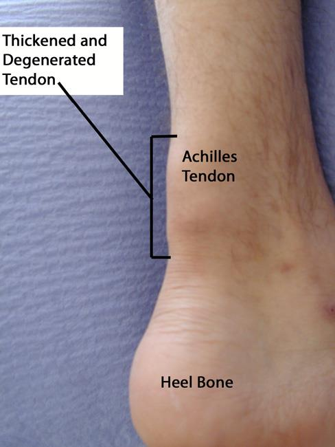 a description of tendonitis which means inflammation of a tendon A tendon or sinew is a tough band of fibrous connective tissue that usually connects muscle to bone and is capable of withstanding tension tendons are similar to ligaments both are made of collagen.