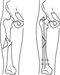 Fixation of femur with intramedullary nail