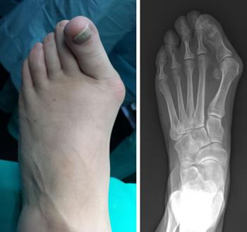 Photo and x-ray of foot deformed by a bunion