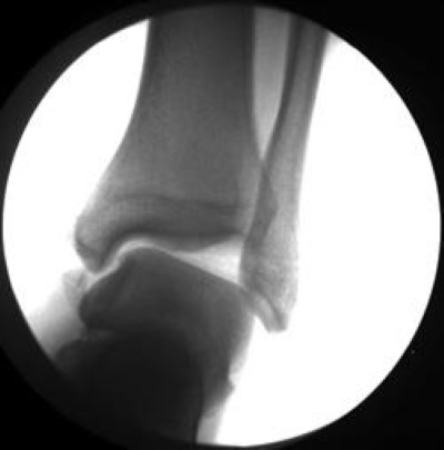 Ankle instabillity