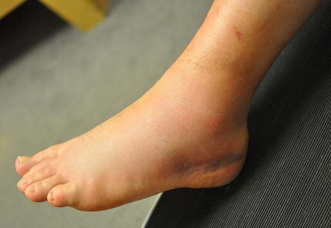 Bruised and swollen ankle