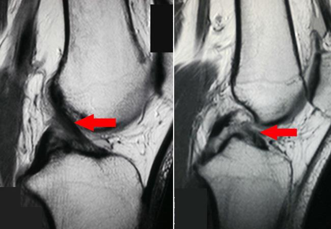 MRI of torn ACL