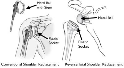 Illustrations of total shoulder replacement and reverse total shoulder replacement