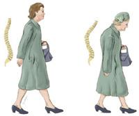 Illustration of the stooped appearance of a person with osteoporosis
