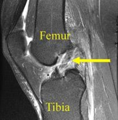 MRI of ACL tear