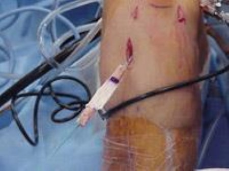 Passage of patellar tendon graft during ACL reconstruction