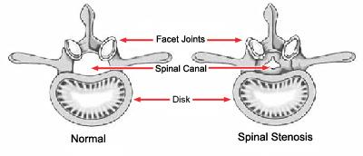 Illustrations of a healthy vertebra and a vertebra with stenosis