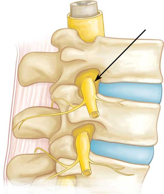 Illustration of spinal nerve root