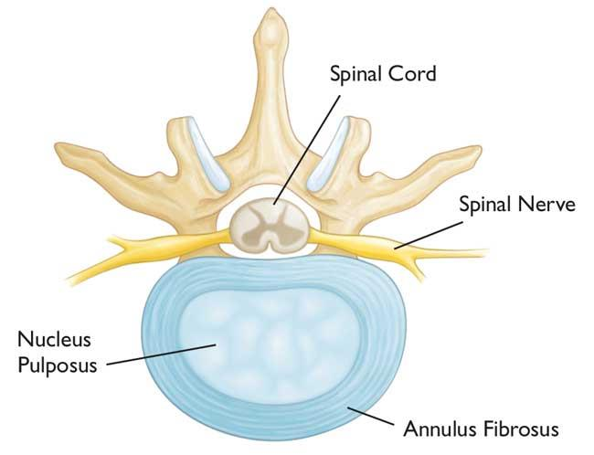 Illustration of an intervertebral disk