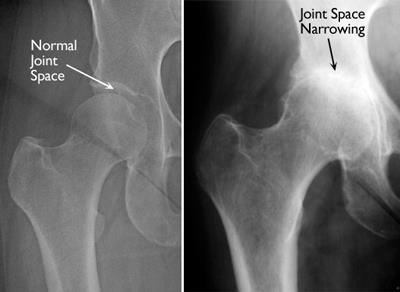 normal hip and hip with inflammatory arthritis