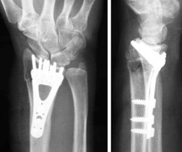 smith fracture wrist