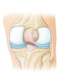 Complete tear of the posterior cruciate ligament