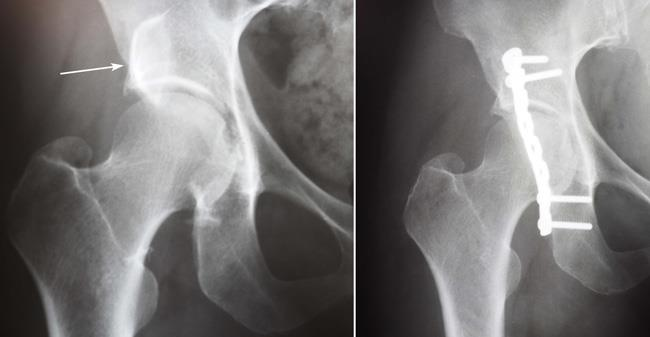 X-rays of an acetabular fracture before and after internal fixation