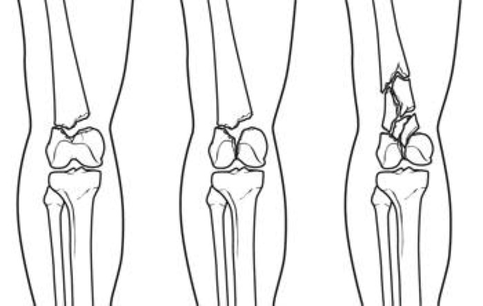 Different types of distal femur fractures