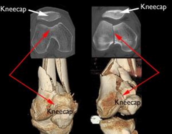 CT scans and 3-dimensional models of distal femur fractures