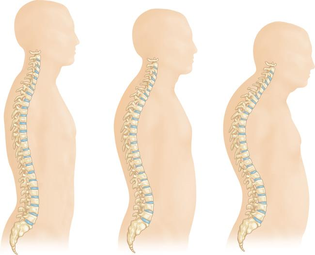 Changes in the spine from the progression of osteoporosis