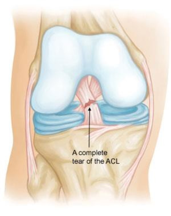 the anterior cruciate ligament acl injuries Anterior cruciate ligament injury on sports medicine australia | injuries to the anterior cruciate ligament (acl) are relatively common in sport, especially in.