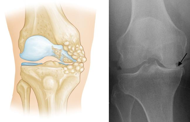 illustration of osteoarthritis limited to medial compartment; x-ray of osteoarthritis in medial compartment