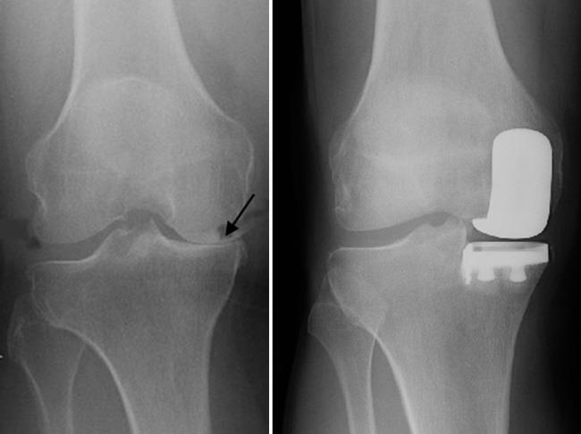 X-rays of a good candidate for partial knee replacement