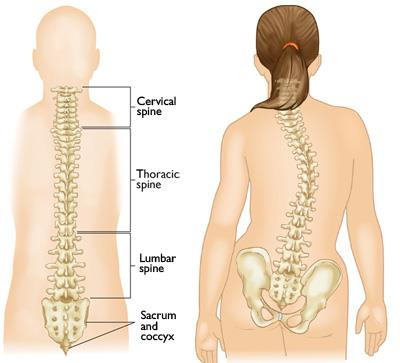 Illustrations of a normal spine and a spine with scoliosis