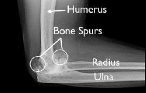 x-ray of elbow osteoarthritis