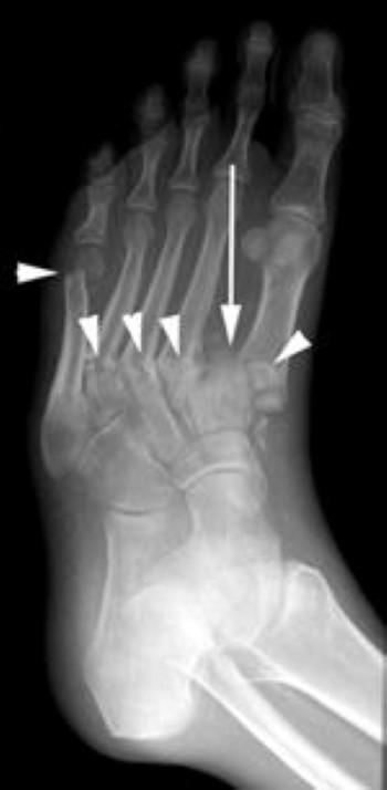 fractures and dislocation of metatarsals