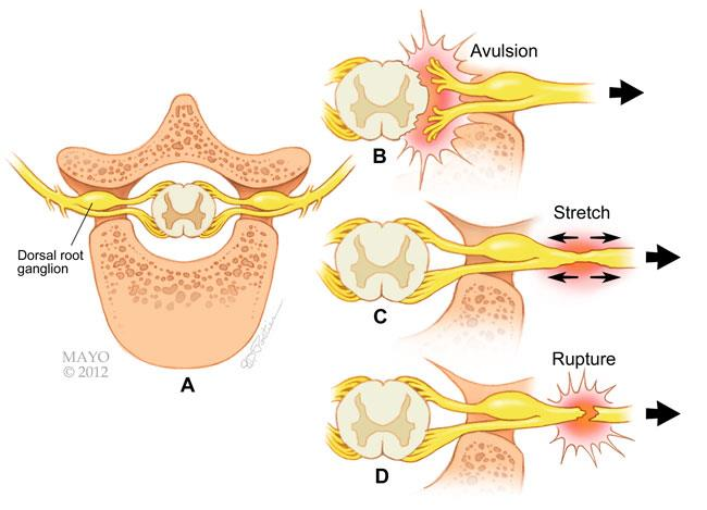 Brachial Plexus Injuries - OrthoInfo - AAOS