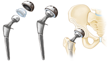 hip replacement implants